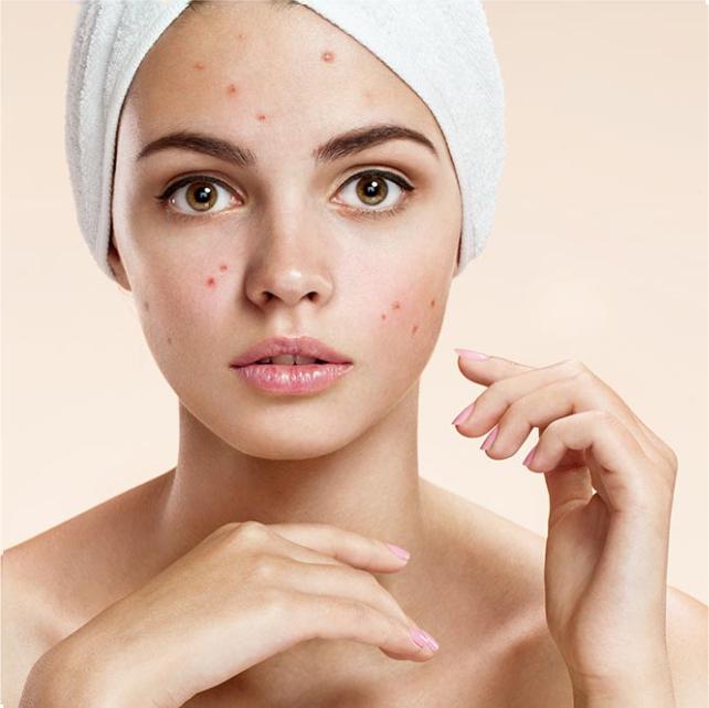 Как добиться чистой кожи: 8 простых шагов